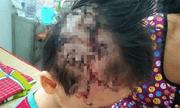 Kinh hoàng bé trai 5 tuổi ở Tiền Giang bị chó nhà hàng xóm cắn rách da đầu