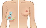 Treo ngực sa trễ là gì, có giống với nâng ngực không?
