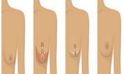 Các cấp độ và phương pháp treo ngực sa trễ