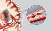 Thực phẩm bảo vệ sức khỏe Nattospes – Giải pháp cho người bị đột quỵ não