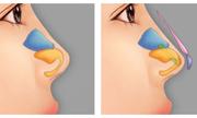 Có nâng mũi bọc sụn - Không còn lo bóng đỏ đầu mũi