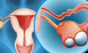 """""""Đánh bại"""" triệu chứng u nang buồng trứng bằng sản phẩm thảo dược Nga Phụ Khang"""