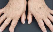 7 triệu chứng viêm khớp dạng thấp và cách phòng ngừa nhờ sử dụng Hoàng Thấp Linh