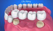 Làm cầu răng có ưu, nhược điểm gì?