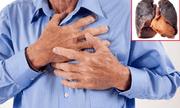 Dù đã bỏ hút thuốc nhiều năm, ung thư phổi vẫn là mối