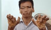 """Bệnh """"người cây"""" lần đầu được phát hiện ở Việt Nam"""