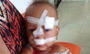 Quảng Bình: Xót xa bé gái 2 tuổi nhập viện, khâu 12 mũi trên mặt do bố mẹ mâu thuẫn