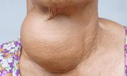 Ứng dụng kỹ thuật mới trong điều trị triệt để u tuyến giáp