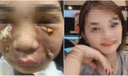 Sau một ngày tiêm mỡ tự thân vào mặt, cô gái trẻ phải nhập viện khẩn cấp vì nhiễm trùng
