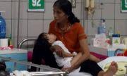 Bé gái 3 tuổi nhập viện với vết thương hoại tử do rắn hổ mang bò vào nhà cắn