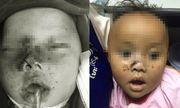 Cứu sống bé trai 9 tháng tuổi bị anh trai bắn súng vào mặt