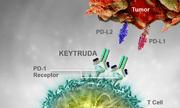 Lần đầu tiên tại Việt Nam điều trị thành công u lympho tế bào T/NK bằng thuốc miễn dịch
