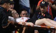 Nữ cổ động viên bị trúng pháo sáng trên sân Hàng Đẫy: