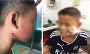Nghệ An: Phát hiện 3 cháu bé nhiễm