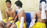 Chùm bóng bay bất ngờ phát nổ trên sân, 3 cầu thủ U14 Sông Lam Nghệ An bị bỏng nặng