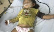 Trên đường đi học về, bé 3 tuổi bị ong đốt nguy kịch