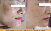 Bí kíp trị nám tàn nhang không tái phát - hiệu quả đến 99%