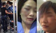 Hà Nội: Nữ nhân viên phụ xe buýt bị 4 thanh niên hành hung đúng ngày 20/10