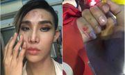 Người mẫu The Face tố bị tài xế Go-Viet hành hung, gây thương tích