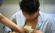 Kỳ lạ thanh niên sau khi đi làm một năm tăng hơn 25kg, ngực tiết ra dịch sữa