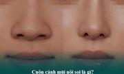 Thu gọn cánh mũi nội soi - Tiểu phẫu nhưng có thật sự an toàn?