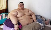 Người đàn ông béo nhất thế giới giảm thành công 330kg