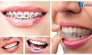 Giải đáp nha khoa: Răng đã bọc sứ có niềng được không?