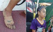 Nghị lực phi thường của bé gái 11 tuổi giành 3 huy chương vàng chỉ với băng dính quấn quanh chân