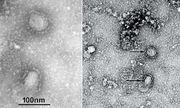 Công bố hình ảnh đầu tiên về virus corona gây dịch viêm phổi cấp tại Vũ Hán