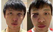Hé lộ hình ảnh kẻ đánh du học sinh người Singapore bầm dập, gẫy xương mặt vì virus Covid-19