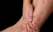 Bật mí nguyên nhân và cách điều trị bệnh vảy nến ở chân