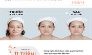 RH - Skin - Thành tựu siêu tái sinh trẻ hoá làn da của Nhật Bản - Lần đầu có mặt tại Việt Nam