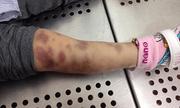 Thông tin mới vụ bé gái 3 tuổi tử vong nghi do mẹ và bố dượng bạo hành