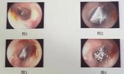 Tin tức đời sống mới nhất ngày 30/4/2020: Nhện sống trong ống tai người phụ nữ