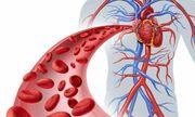 Triệu chứng rối loạn mỡ máu: bạn sẽ mắc phải nếu không thật sự hiểu về nó
