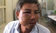 Vụ nhân viên trung tâm Cây xanh Huế bị đánh gãy xương hàm: Công an vào cuộc điều tra