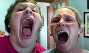 Cậu bé 16 tuổi ở Mỹ phá kỷ lục Guinness với chiếc miệng rộng nhất thế giới