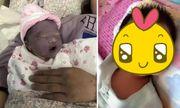 Mẹ phát khóc khi nhìn con mới sinh tím như củ khoai môn, ngoại hình sau 3 tháng mới là điều bất ngờ