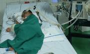 Bé trai bị ong vò vẽ đốt hơn 80 vết, nhập viện trong tình trạng phù toàn thân, suy hô hấp nặng