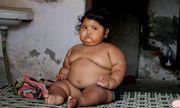 Bố mẹ lo sốt vó vì con gái 3 tuổi ăn khỏe như trẻ 10 tuổi
