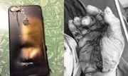 Nam thanh niên bỏng toàn thân vì vừa sạc pin, vừa dùng điện thoại