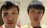 Thủ phạm hành hung du học sinh người Singapore vì kỳ thị đã nhận tội