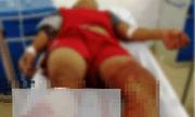 Vụ thiếu niên 15 tuổi bị chém lìa chân: Người mẹ tiết lộ
