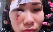 Vụ cán bộ xã bị tố đấm rách mặt người phụ nữ cắt cỏ: Người trong cuộc trần tình gì?