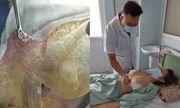 Tin tức đời sống mới nhất ngày 17/9/2020: Bị vỡ túi silicon, người phụ nữ phát hiện u ở ngực