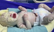 Quảng Ninh: Bé sơ sinh mắc bệnh hiếm gặp, vảy trắng bao bọc toàn thân