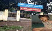 Đắk Lắk: Làm rõ trách nhiệm của hiệu trưởng trong vụ học sinh bị giáo viên đánh tím đùi