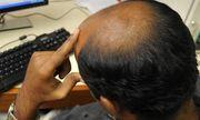 Giấu chuyện hói đầu trước khi cưới, người đàn ông bị vợ kiện ra tòa