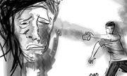 Điều tra vụ nam thanh niên bị kẻ lạ mặt tạt axit khi đang đi trên đường