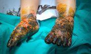Điều trị vết bỏng bằng thuốc nam, bé trai 17 tháng tuổi nhiễm trùng nặng cả hai chân